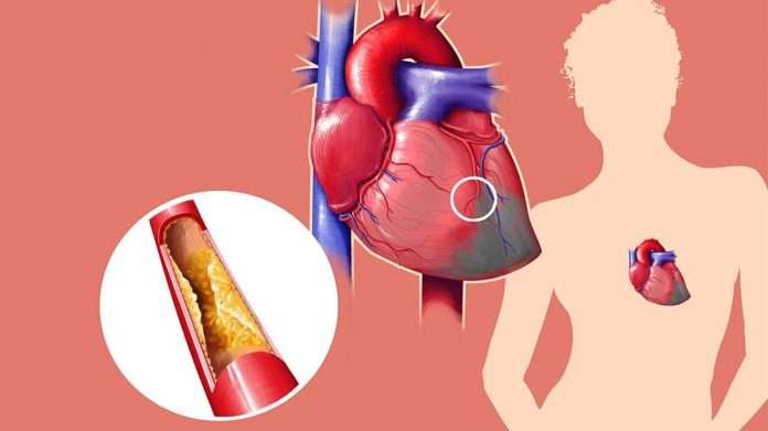 Facts You May Not Know About Cholesterol