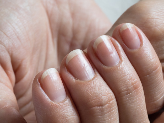 What is Toe Nail Fungus and Tips for its Treatment